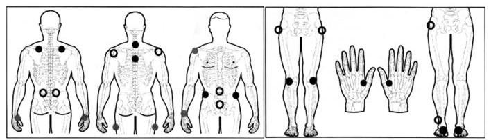 muskelstimulator - elektroterapi